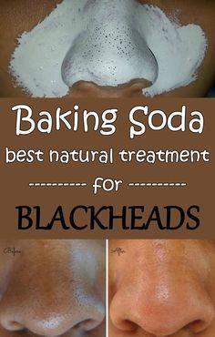 Baking soda - Best natural treatment for blackheads