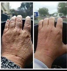 Try our Luminesce serum & moisturizer to make your hands look fabulous. www.lovisaskin.jeunesseglobal.com