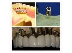 Global Implant Abutment Market Research Report 2017