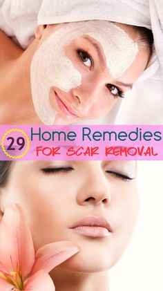 Trying! I hate my acne scars Natural Cold Remedies, Cold Home Remedies, Natural Remedies For Anxiety, Sleep Remedies, Herbal Remedies, Alphonse Mucha, South Beach, Hotel Miami, Beauty Secrets