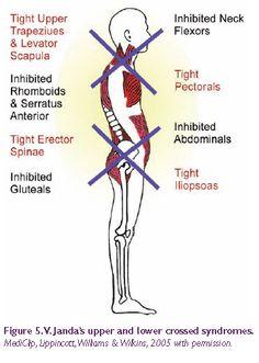 Janda's upper & lower crossed syndromes