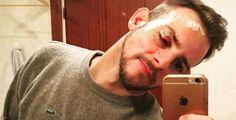 OPERACIÓN TRIUNFO 1    Alex Casademunt, agredido en una discoteca de Vigo    El cantante y exconcursante de OT requirió asistencia médica ...