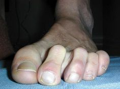 Image: 50.28.4.245  Hammer, Claw, and Mallet Toes Your toes are not supposed to resemble a tool used for pounding nails, but sometimes things can go dreadfully wrong and your straight happy little toes can turn into hooked monsters.