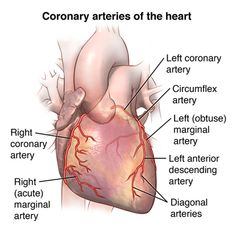 A person with coronary heart disease has an accumulation of fatty deposits in the coronary arteries. These deposits narrow the arteries and can decrease or block the flow of blood to the heart. Cardiac Nursing, Nursing Mnemonics, Heart Catheterization, Cardiothoracic Surgery, Medical Coding, Medical Care, Bypass Surgery, Medical Anatomy, Medical Information