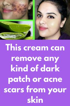 This cream can remove any kind of dark patch or acne scars from your skin in jus… – Aloe Vera Aloe Vera For Skin, Aloe Vera Skin Care, Honey For Acne Scars, Acne Scar Removal, Hair Removal, Spots On Face, How To Apply Lipstick, Mascara Tips, Best Acne Treatment