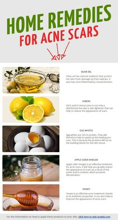 Get the 5 best home remedies for acne scars. Get rid of acne scars and reduce redness and swelling of pimples overnight. - Get the 5 best home remedies for acne scars. Get rid of acne scars and reduce redness and swelling of pimples overnight. Cystic Acne Remedies, Scar Remedies, Natural Acne Remedies, Home Remedies For Acne, Skin Care Remedies, Natural Acne Treatment, Scar Treatment, Natural Skin Care, Natural Makeup