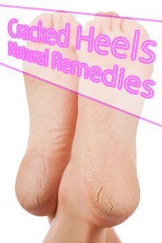 Cracked Heels Natural Remedies -  most effective remedies for getting rid of foot cracks and dry heels. #health #skincare #natural_remedies
