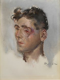 Soldier with facial wounds by Henry Tonks, 1916-18.