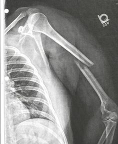 Xray of my broken humerus...not as funny as it sounds. OUCH!  Check out the after pic.