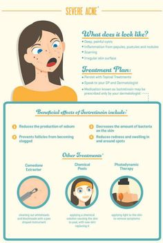 Severe acne can be painful. Learn how to get rid of #acne @ http://bit.ly/1CwhaVz #Imperialhealth #UK #skincare #beauty #health