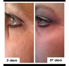 More Real Results with NeriumAD! What is Nerium Skin Care? ONE awesome product you use only at night. REAL Science, REAL Results! Age-defying treatment- fine lines wrinkles, skin texture, pores, aging and sun damaged skin-30day money back guarantee. http://www.theresahum.nerium.ca