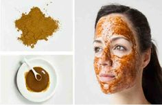 Honey, Nutmeg, and Cinnamon Face Mask - Acne Skin Site - Olive Oil Ideen Nutmeg Face Mask, Cinnamon Face Mask, Honey Face Mask, Anti Aging Skin Care, Natural Skin Care, Pimples Overnight, How To Get Rid Of Pimples, Do It Yourself Fashion, Homemade Facials