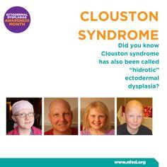 35 Best 2017 Ectodermal Dysplasia Awareness Month images