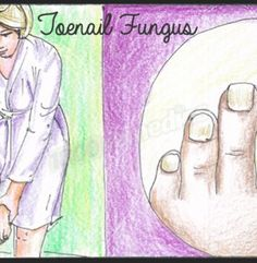 There are several home remedies for toenail fungus that can effectively treat the condition and help you regain the look of your toenails