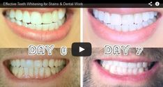 teeth whitening reviews http://reviewscircle.com/health-fitness/dental-health/natural-teeth-whitening/