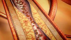 Coronary Artery Disease Animation