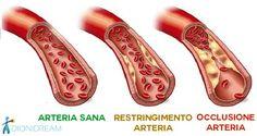 I trigliceridi sono un tipo di grasso nel sangue che si possono abbassare velocemente cambiando la propria alimentazione e assumendo i gusti integratori