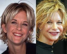 Meg Ryan Bad Plastic Surgery - used to be my style :(