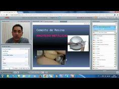 Protocolo Adhesivo En Diferentes Sustratos  con Dr. Alberto Quiroga.