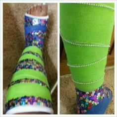 DIY: Sequined Leg Cast Long Leg Cast, Arm Cast, Cast Art, Crutches, Surgery, Chloe, Creativity, Medical, Decorating