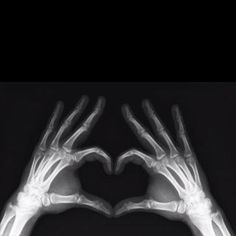 I WILL get into radiology... Correction.. i DID get into radiology!!!