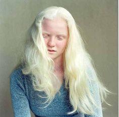 Lauren, albino girl photographed by Rick Guidotti.