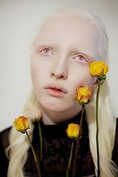 albino girl with purple eyes - Google Search