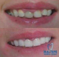 Cosmetic Dentistry Procedures, Dental Veneers, Perfect Teeth, Dental Crowns, Beautiful Smile, Teeth Whitening, Clinic, Cosmetics