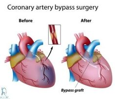 Acute coronary syndrome is an umbrella term for a variety of cardiac conditions. Acute coronary syndrome treatment options depend on overall condition of the patient. Angioplasty and coronary bypass surgery are two of surgical treatment options Heart Arteries, Acute Coronary Syndrome, Surgery Quotes, Aortic Aneurysm, Open Heart Surgery, Cardiac Nursing, Heart Care, Heart Muscle, Bypass Surgery