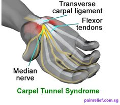 3 Exercises To Help Prevent Carpal Tunnel Syndrome — Lee Hayward's Total Fitness Bodybuilding Carpel Tunnel Syndrome, Median Nerve, Spinal Nerve, Joint Replacement, Hand Therapy, Carpal Tunnel, Nerve Pain, Pain Relief, Home Remedies