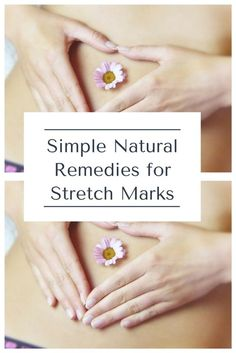 Anytime the body puts on weight at a fast pace stretch marks can happen. Here are some natural remedies for stretch marks that have some evidence behind them. Skin Care Regimen, Skin Care Tips, Prevent Stretch Marks, Stretch Mark Remedies, Cellulite Remedies, Lots Of Makeup, Anti Aging Treatments, Healthy Oils, Prevent Wrinkles