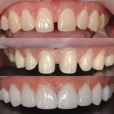 Do you like these e.max veneers closing this diastema? e.max Press Crowns and Veneers. Masking a Dark Tooth While Achieving Harmony? With 3 Year recall. Dentaltown Cosmetic Dentistry http://www.dentaltown.com/MessageBoard/thread.aspx?s=2&f=101&t=240702&pg=1&r=4497338&v=0&utm_content=buffer38c0c&utm_medium=social&utm_source=pinterest.com&utm_campaign=buffer.