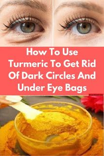 Reduce Dark Circles, Dark Circles Under Eyes, Dark Under Eye, Dark Circles Makeup, Dark Circle Remedies, Turmeric Face Mask, Under Eye Bags, Les Rides, How To Get Rid Of Acne