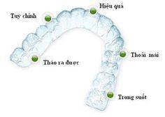 Niềng răng Invisalign là một trong những phương pháp niềng răng hiện đại nhất hiện nay.