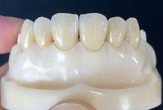Emax crown with printed model - China dental laboratory - Teeth Dental Aesthetics, Cute Tooth, Dental Technician, Dental Laboratory, Smile Teeth, Dental Teeth, Cosmetic Dentistry, Oral Health, Ceramic Art