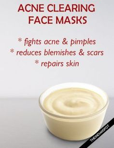 5 Best Natural Acne clearing facial masks