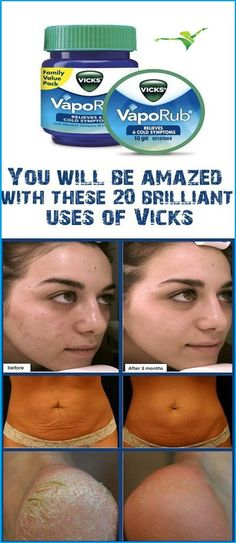 You Will Be Amazed With 20 benefits Of Vicks