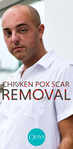 Chickenpox scarring in adults is common. Treatments like laser, peel, mnrf or surgical removal are the best options to remove chicken pox scars. You may expect Rs to Rs for laser chicken scar removal. Natural Remedies For Congestion, Natural Remedies For Anxiety, Natural Cures, Natural Health, Holistic Remedies, Homeopathic Remedies, Home Remedies, Health Remedies, Chicken Pox Scar Removal