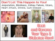 Beat and Reverse Your Type 2 Diabetes Now! Reverse Type 2 Diabetes in 10 Steps Size of Diabetes E book: 210 pages Document Format: PDF (Adobe Acrobat) Diabetes E book Description: Explains the real root causes of Type 2 diabetes and how to control, beat, reverse, and cure the disease. This program will enable you to reduce the insulin resistance and safely wean off the insulin and other drugs. This program is based on an easy-to-follow...