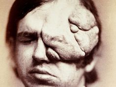 This photograph first appeared in 1871 in the first medical photographic journal. It shows a patient with von Recklinghausen's disease, a disfiguring hereditary disease now known as neurofibromatosis. There is still no cure for the. Medical Photography, Human Oddities, Medical Humor, Medical Facts, Vintage Medical, Medical History, Medical Conditions, Cancer