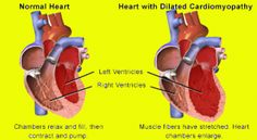 What is Heart Disease - Dilated Cardiomyopathy is one of Many Types.