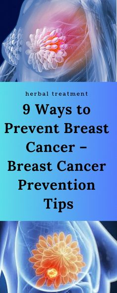 Breast Cancer: Signs, Symptoms, Causes, Treatment Breast cancer in women Breast Cancer Facts Breast Cancer Awareness Breast Cancer: Causes, Symptoms & Treatments Basic Information About Breast Cancer Cervical Cancer Stages, Cervical Cancer Ribbon, Breast Cancer, Cancer Treatment, Cancer Prevention Diet, Natural Cancer Cures, Cancer Facts