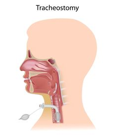 .@WeSpeechies Clinical & Fluoroscopic Issues in Mgmt of Swallowing Disorders in Children w/Tracheostomies http://on.asha.org/1JLqLMf #wespeechies