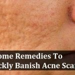 5 Home Remedies To Quickly Banish Acne Scars
