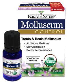 Natural Molluscum Contagiosum Treatment