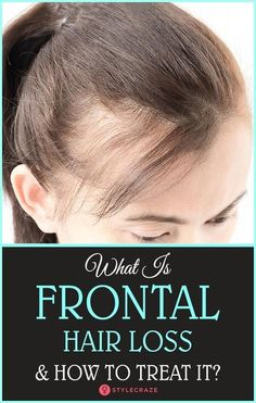 What Is Frontal Hair Loss And How To Treat It? #haircare #hairloss #hairfall #BestHairLossShampoo
