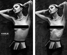 When magazines erase women's ribs to make their thinness less shocking.