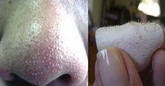 nose blackheads