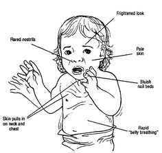 Clinical Signs of Respiratory Distress   Picture 1 - Some signs of respiratory distress. Every parent should know these signs...