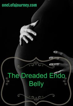 endometriosis and bloating endo belly